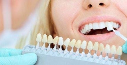 Qual é a diferença entre Faceta de Porcelana e Lente de Contato Dental?