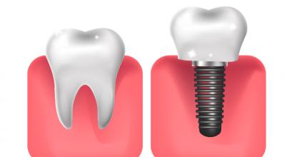 Implantes Dentários: Afinal: quando é indicado fazer esse procedimento?