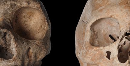 A odontologia dos Neanderthais
