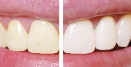 Como é realizado o clareamento nos dentes?